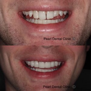 Dr Guy discusses Ant and Dec's cosmetic dentistry