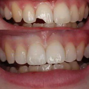 Repairing Chipped Teeth