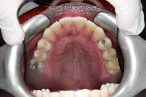 AO_Invisalign_occlusal_mandibular after