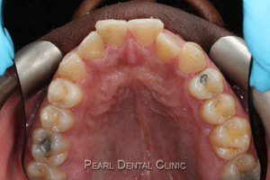 AO_Invisalign_occlusal_mandibular before