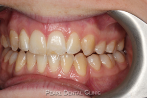 AW_Invisalign occlusal_maxillary after