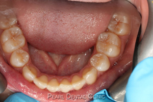 AW_Invisalign occlusal_maxillary before