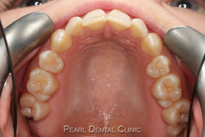 AW_Invisalign_occlusal_mandibular before