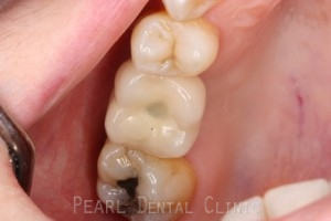 After 8W Sinus Tap Procedure - Access hole sealed with white filling material