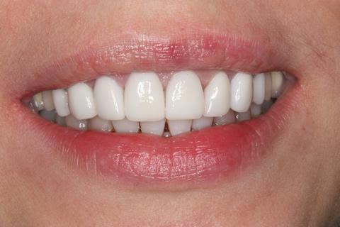 After - Front top_bottom arch teeth Emax veneer