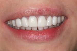 After - Front top_bottom arch teeth Emax veneer