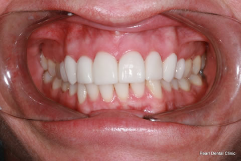 After - Full arch upper_lower Emax Veneers