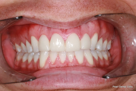 After - Full arch whitened_Emax veneers teeth