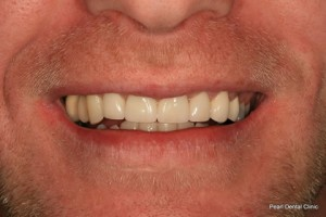 After Full upper teeth crown_veneer smile makeover