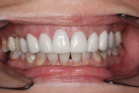 After - Full upper_lower arch teeth Emax veneer