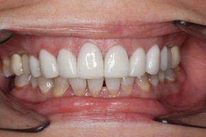 After - Full upper_lower arch teeth Emax veneer