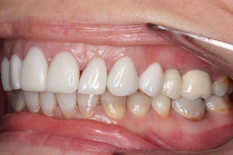After - Left front top_bottom arch teeth Emax veneer
