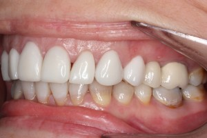 After - Left front top_bottom arch teeth Emax veneer