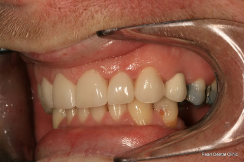 After Left full arch teeth smile makeover veneers_crown