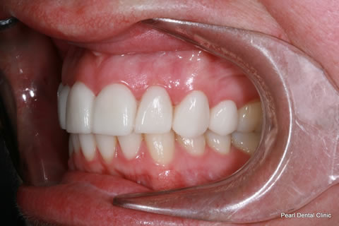 After - Left full arch upper_lower Emax Veneers
