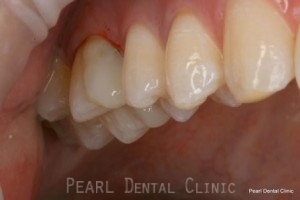After Mercury Free White Fillings