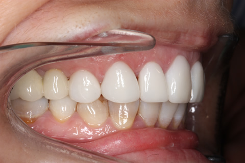 After - Right front top_bottom arch teeth Emax veneer