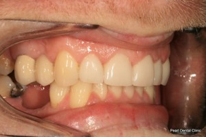 After Right full arch teeth smile makeover veneers_crown