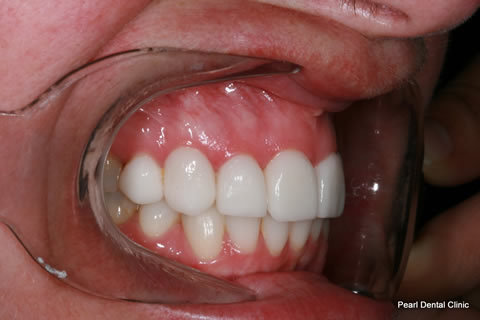 After - Right full arch upper_lower Emax Veneers