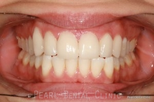 After Teeth Whitening_Veneers Full arch flourosis teeth