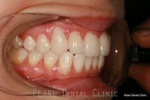 After Teeth Whitening_Veneers Right side full arch flourosis teeth