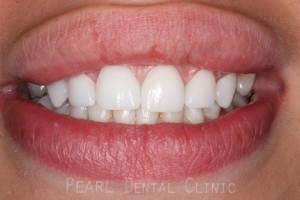 After Upper Teeth Gaps - Emax veneers upper gaps filled
