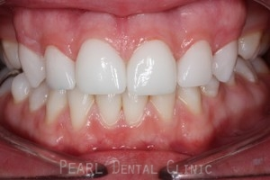 After Upper Teeth Gaps - Full arch teeth Emax veneers upper gaps filled