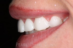 After Veneers - Emax veneers closed gap left side