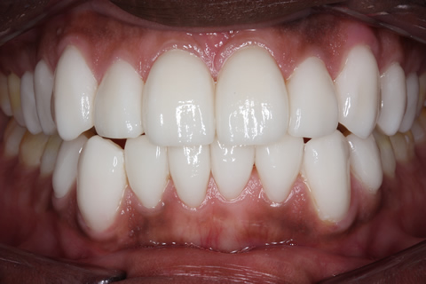 After Veneers - Fluorosis top_bottom teeth stain