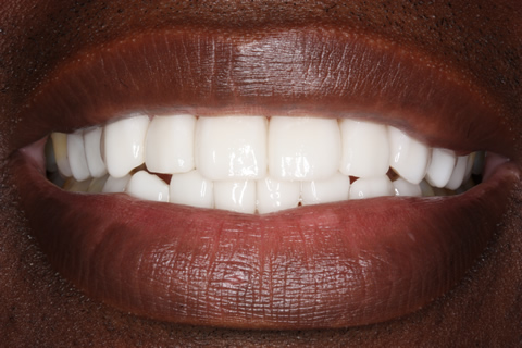 After Veneers - Fluorosis upper_lower teeth stain
