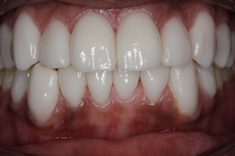 After Veneers - Fluorosis upper_lower teeth stain_2