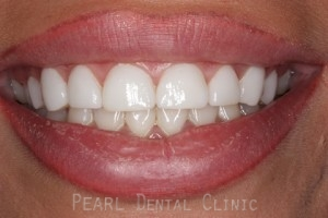 After Veneers - Gaps between teeth