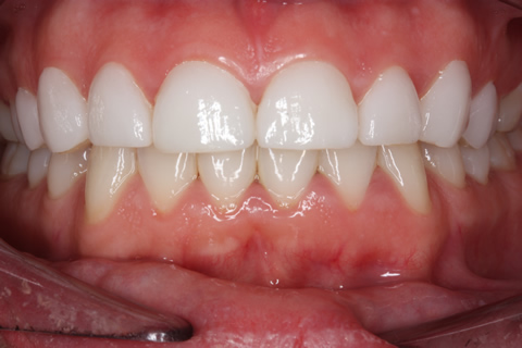 After Veneers - Gaps between teeth front