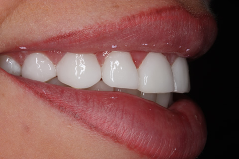After Veneers - Gaps between teeth right side