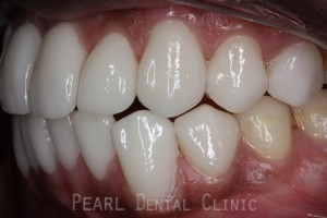 After Veneers - Left side fluorosis top_bottom teeth stain