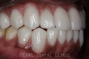 After Veneers - Right side fluorosis upper_lower teeth stain
