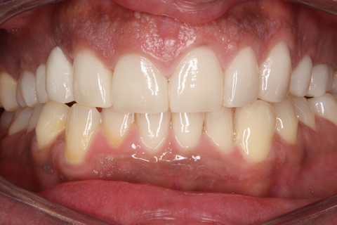 After Veneers_crowns - Full upper_lower arch teeth Emax veneers_crowns