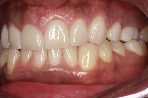 After Veneers_crowns - Left side full upper_lower arch teeth Emax veneers_crowns