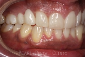After Veneers_crowns - Right side full upper_lower arch teeth Emax veneers_crowns