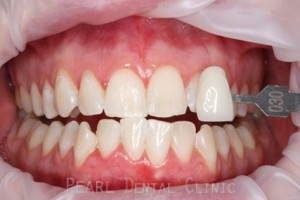 After Zoom Teeth Whitening - Zoom whitening