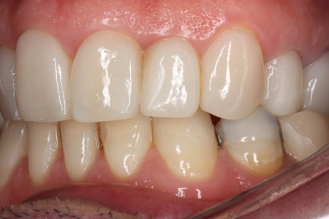 After teeth alignment_veneers - Left side upper_lower arch teeth alignment