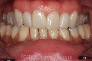 Upper_lower arch declined orthodontic treatment