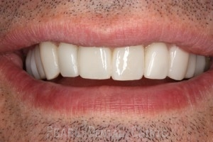 Ater teeth alignment_veneers - Front teeth look
