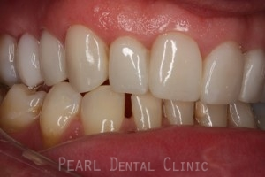 Ater teeth alignment_veneers - Right side upper_lower arch teeth alignment