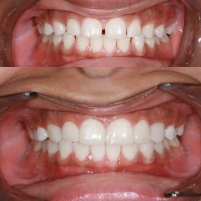 Veneer and Snap On Smile Reviews