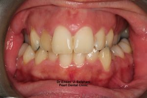Invisalign Before and After - Full upper/lower arches teeth