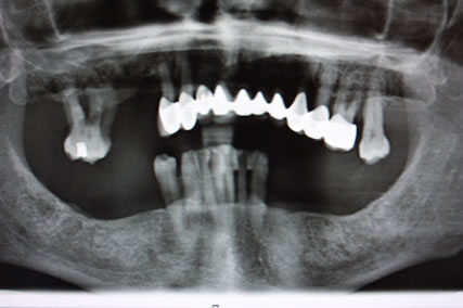 Full mouth Rehabilitation Implant - Upper_Lower teeth bone loss