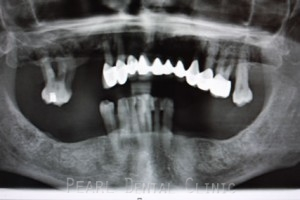 Full mouth Rehabilitation Implant - Upper_Lower teeth bone loss