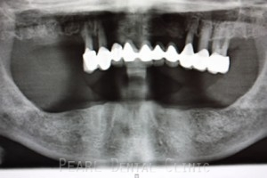 Full mouth Rehabilitation Implant - Upper_Lower teeth extracted