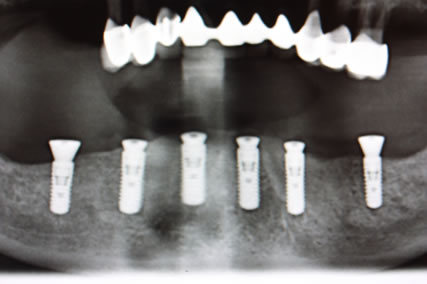Full mouth Rehabilitation Implant - Upper_Lower teeth implant placement